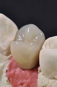 Prothèses amovibles à Châtelet