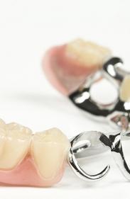 Implant dentaire à Châtelet