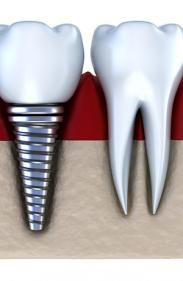 Facette dentaire à Châtelet