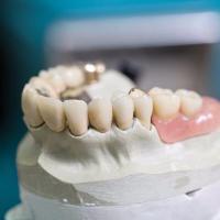 Produit de notre chirurgien dentiste à Charleroi, en belgique